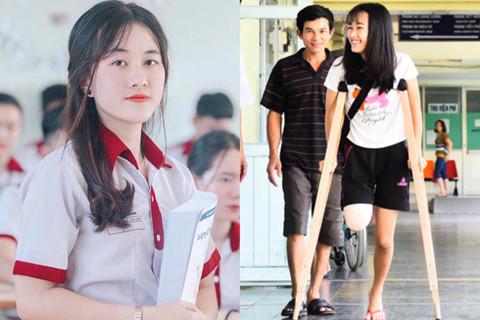 10X Đắk Lắk bị cưa chân và những cô gái tỏa sáng dù khiếm khuyết