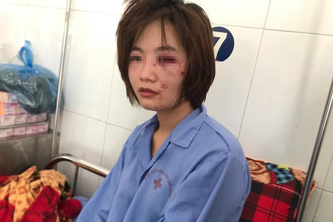 Cảnh sát làm rõ nhóm đánh nữ phụ xe buýt nhập viện