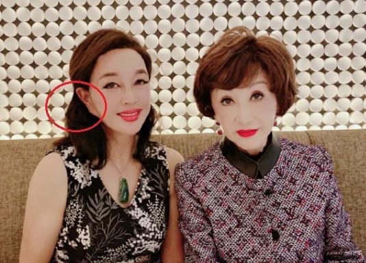 Lưu Hiểu Khánh bị chế nhạo vì photoshop ảnh quá đà