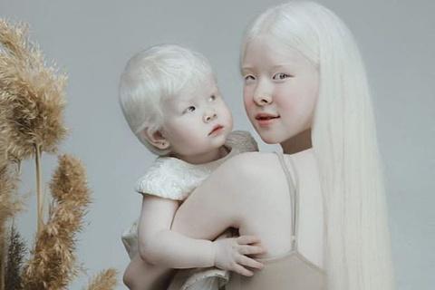 2 chị em bạch tạng ở Kazakhstan nổi tiếng nhờ vẻ đẹp khác lạ
