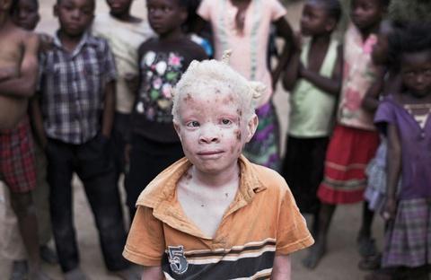 Người bạch tạng ở châu Phi bị săn nội tạng, đổ là mầm bệnh Covid-19