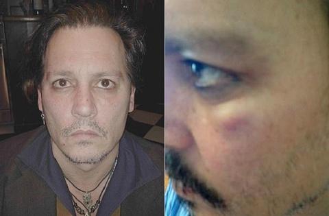 Johnny Depp tố bị vợ cũ hành hung