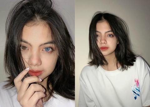 Nữ sinh Hà Nội sở hữu đôi mắt 2 màu