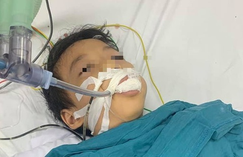 Bé gái 6 tuổi ăn nhầm thuốc diệt chuột