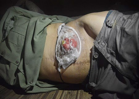 Xót xa người đàn ông bị lòi ruột đã hơn 3 năm không có tiền đi viện.